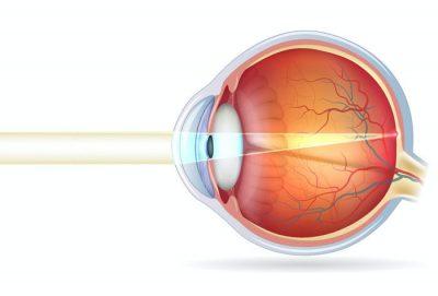 Normalsichtigen Auge